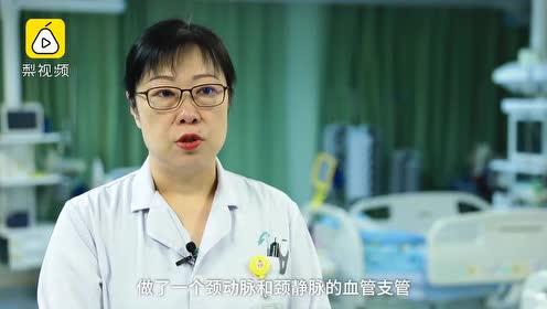 """人工心肺""""代班""""6天,爆发性心肌炎女童转危为安"""