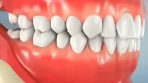 医学3D动画演示:智齿是如何拔除的?看着好酸爽