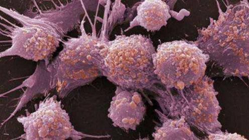 """化疗是怎么""""杀死""""癌细胞的?看完全过程,真的好太过瘾!"""