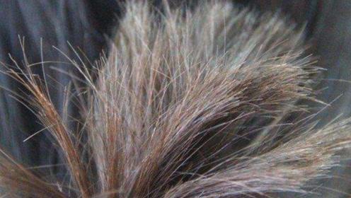 白发丛生不仅显老,体内原因;坚持做好这几点,15天白发慢慢变乌发