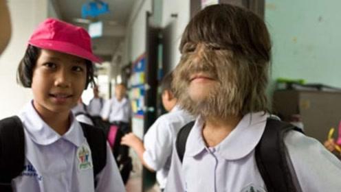 """17岁女孩被称为""""女猴子"""",脸上长满毛发,网友:未进化的人类"""