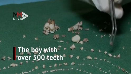 印度男孩嘴里长526颗牙齿,如果不是亲眼所见,谁敢相信?