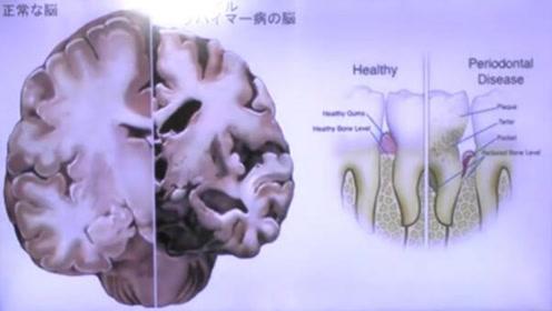 《科学》子刊:牙周炎可能导致阿尔茨海默病