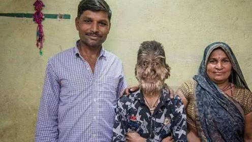 """印度男童满脸长毛,长度高达10厘米,当地人称为""""狼人"""""""