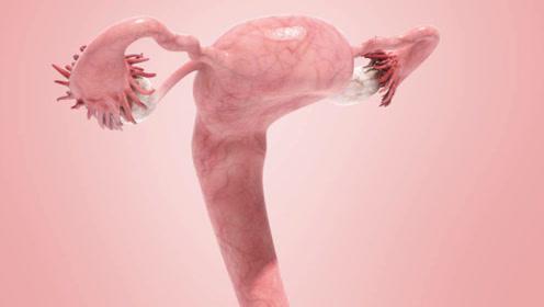 35岁女子确诊宫颈癌,混乱生活惹的祸