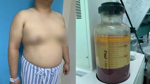 26岁小伙患乳腺发育症有C罩杯,抽出1500ml脂肪