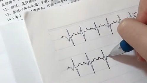 在CCu实习期间天天听这种声音,也学会了点心电图,你是来搞笑的吗?