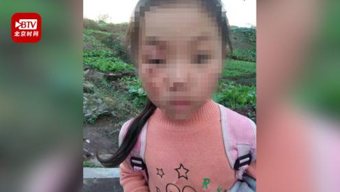 留守女童被后奶奶开水烫伤脸 官方:已批评教育 并将女童交给外婆抚养