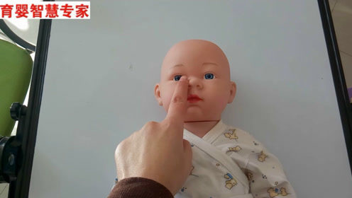 新生儿泪囊炎按摩方法,症状眼睛总是泪汪汪,眼角很多眼屎