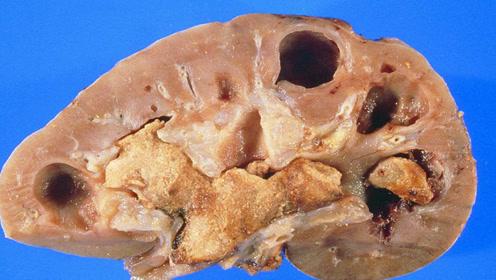这种水果带皮啃,积累毒素,形成结石,吃之前一定要削皮
