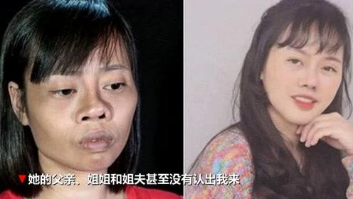 越南丑姑娘遇车祸毁容 整容后成美女连家人都没认出来