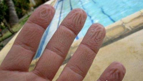"""泡水后,为什么手指会变皱,其中的""""奥秘""""你知道吗?"""