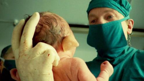 美国女婴出生长了张猪脸,被家人囚禁18年