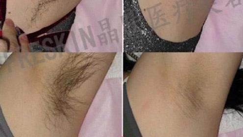 """女生""""腋毛""""太多怎么办?别尴尬专家告诉你,原来体毛作用这么大"""