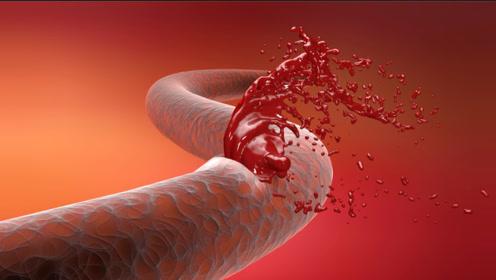 想要降血压,就少做1事,会影响降压药效果,需提高警惕