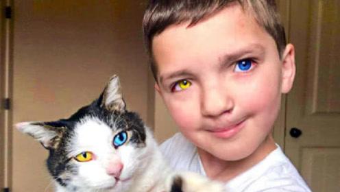 """9岁男孩无意拥有双色眼,直呼可以看到""""脏""""东西,一周后身亡!"""