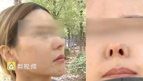 女孩花6万整容,术后鼻孔一大一小快崩溃:侧脸就像阿凡达