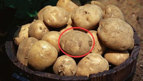 美容师:爱吃土豆的人请注意,土豆和它一起吃,脸上容易长雀斑!
