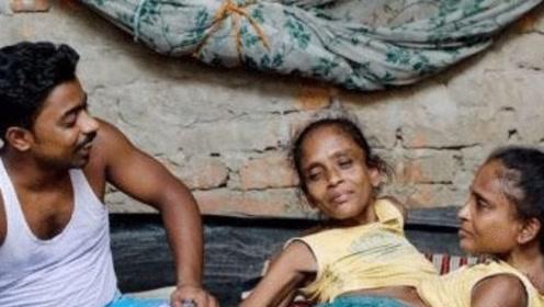 在印度有2位姐妹共用下半身,而且还嫁给同一名男子,婚后很幸福
