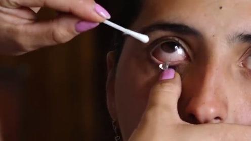 """真·""""钻石公主"""" 女子眼中一天流50余颗晶体 医生的解释来了"""