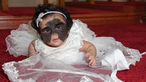 女婴患罕见皮肤病 面部先天性黑痣酷似蝙蝠侠面具