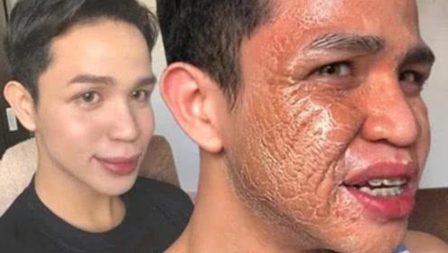 女人每天坚持敷面膜,到底有什么影响?看完让人头皮发麻!