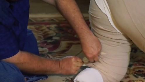 世界上最严重的淋巴水肿,女子患病53年,右腿已经肿成大象!