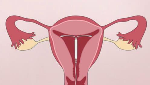 女性绝育是怎样上环的?看完手术过程,莫名心疼她们!