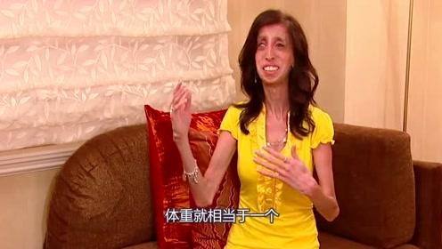 国外最瘦的女子,父母不离不弃,长大后却能成为一名超级演说家