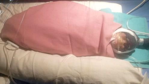 印度75岁老奶奶产女体重仅1.2斤 或打破世界上最年长孕妇记录