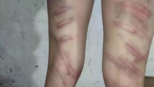 气愤!温州12岁女孩背不出书遭老师虐待抽打,双腿伤痕累累