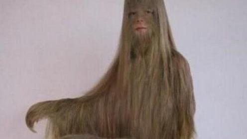 世界上体毛最长的女人,好像一只猴子,脱毛后还是挺美的!