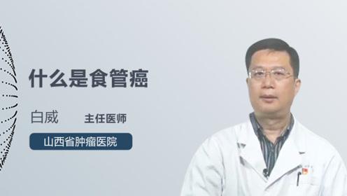 什么是食管癌?专家终于说清楚了