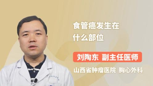 食管癌发生在什么部位?听听专家怎么说