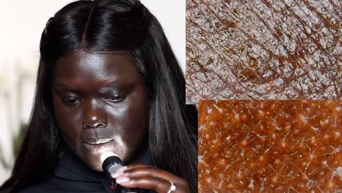 黑人皮肤是什么样的?用显微镜放大观察,才知手和脸区别这么大!