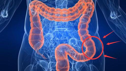 """""""肠癌""""为啥一发现就是晚期?这3个早期""""症状"""",可能被你忽视了"""