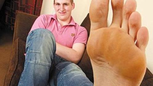 """男子40厘米大脚全球第一,""""天赋异禀"""",这谁受得了"""