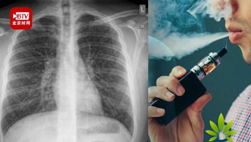 17岁少年吸电子烟患爆米花肺 加医师协会认为或成电子烟新疾病