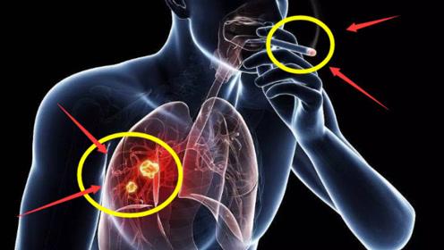 """若吸烟时有这""""3个异常"""",一定要高度重视,这是""""肺癌""""发出的信号"""
