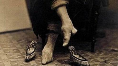 """古代女性的""""裹脚""""到底有多疼?""""三寸金莲""""真的时髦吗?"""