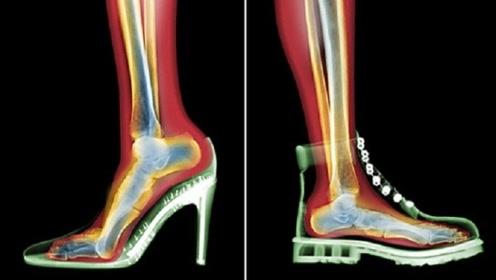 长期穿高跟鞋的女性,脚部会发生什么变化?看完我慌了!