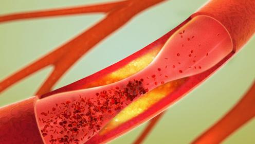 血管变窄了的人,睡觉时会发现这4个症状,请及时就医