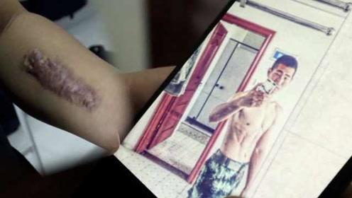 消防员灭火受伤,手臂留下10厘米疤痕:这是奖章