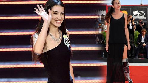 残疾女子夺得意大利选美比赛季军却遭网络喷子贬低