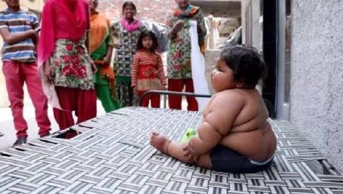 女孩儿1岁时就有46斤,食量大的惊人,医生也无可奈何