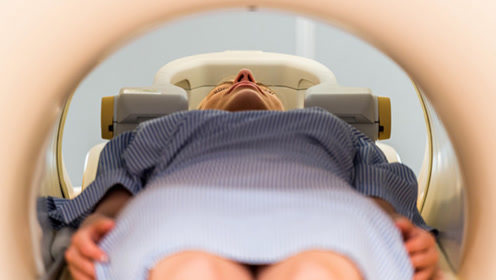 人工智能辅助女性癌症早筛 又快又准还不累