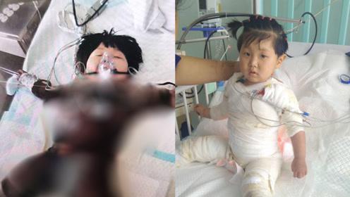 两岁女孩掉进开水锅全身烫伤 父母在ICU门外跪一夜