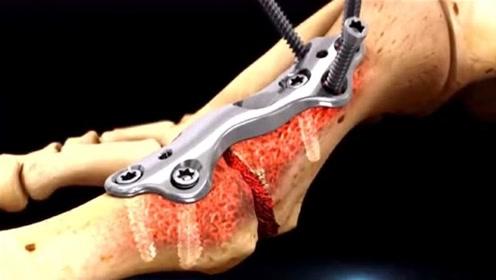 医生是怎么做断骨手术的?3D动画演示全过程,隔着屏幕都感觉疼