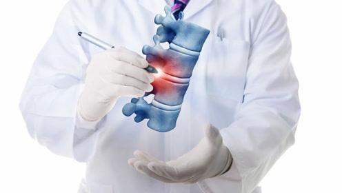 健康科普:专家讲脊柱病 二