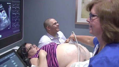 女子以为怀了双胞胎,去检查后医生不淡定了,肚子里数量破纪录!